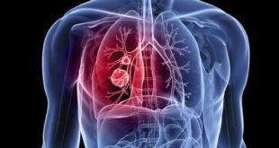 Polmoni3 Trentamila sardi fanno i conti con scompensi cardiaci