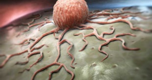 tumori applicazioni