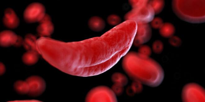 anemia cellula sangue