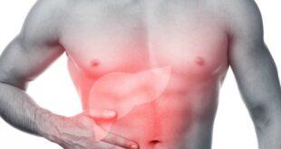 Fegato grasso: nuovo integratore previene la malattia