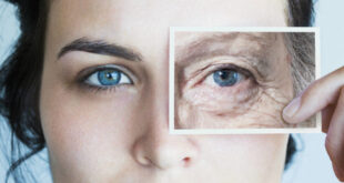 Invecchiamento