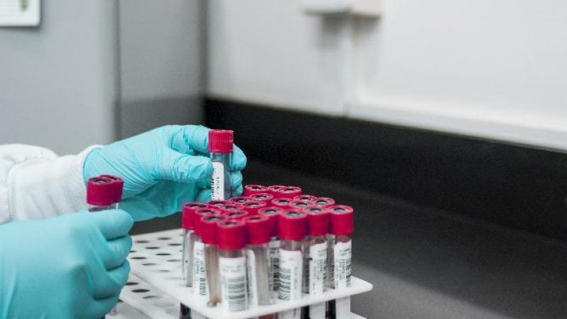 """Covid, Ricciardi: """"Vaccino efficace anche su variante inglese"""""""