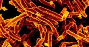 Mycobacterium abscessus
