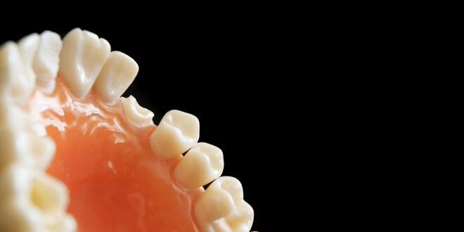 ortodonzia, risparmio, disinformazione