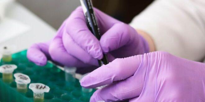 cellule sanguigne, laboratorio