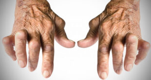 artrite reumatoide infliximab