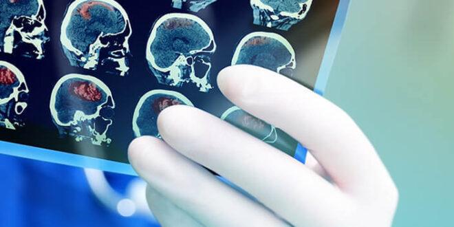content radiografia cervello