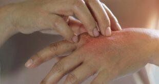 dermatite da stress 1000 1000
